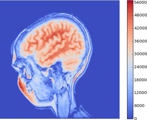 MRI coolwarm
